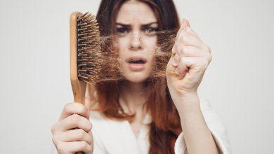 ریزش موی سر