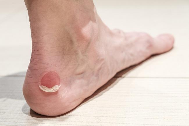 مراقبت از پای دیابتی