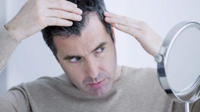 ریزش مو در جوانی